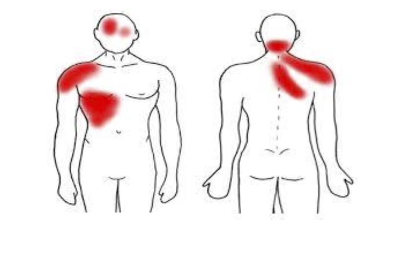Disfunción de Hígado y dolores referidos
